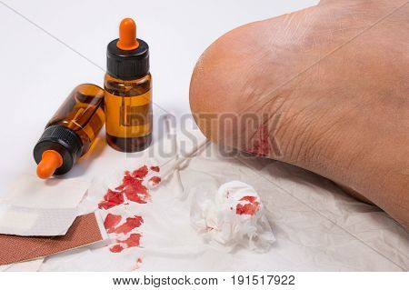 Fresh Bleeding Wounds On Heel With First Aid Supplies, First Aid Equipment Or Emergency Medical Prod