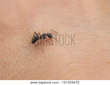 small insect ant crawling on the skin of the human hand