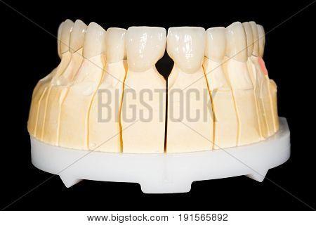 Dental zirconia bridge on isolated black background