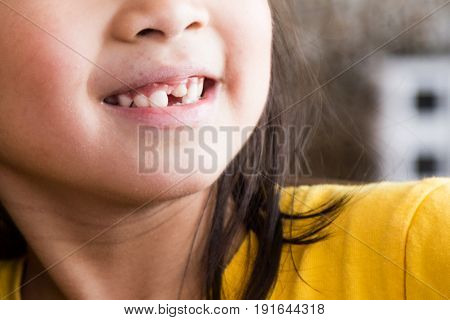 Kid With Toothless And Deformed Front Teeth