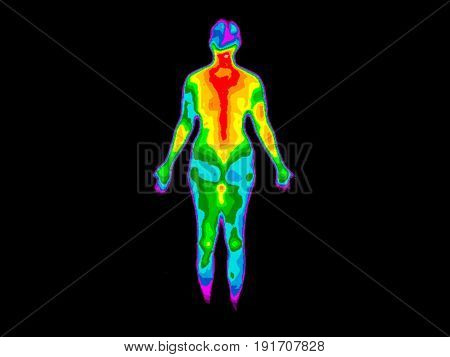 Thermographic image of the back of the whole body of a woman with the photo showing different temperatures in a range of colors from blue showing cold to red showing hot which can indicate joint inflammation.