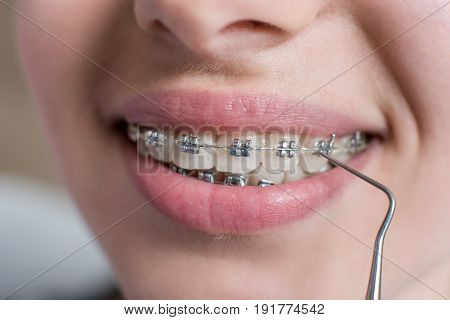 Macro Shot Of Teeth With Braces. Smiling Female Patient With Metal Brackets At The Dental Office. De