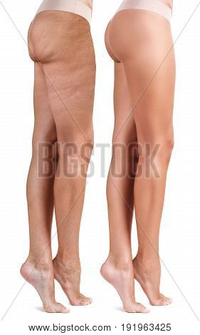 Buttocks of young woman before and after treatment. Cellulite problem concept.
