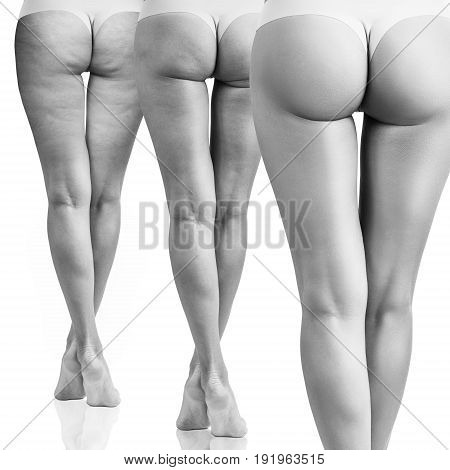 Buttocks of young woman in treatment phase. Before and after cellulite.