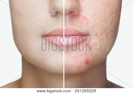 A Young Girl With A Problem Skin. Photo Before And After Treatment For Acne.
