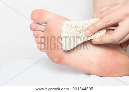 A Person Removes Scrubs Dry Calluses And Natograms From The Sole Of A Foot With Pumice Stone, Close-