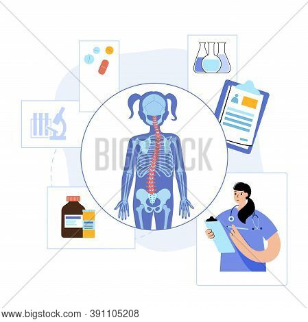Spine Xray Anatomy In Girl Body. Spinal Pain In Backbone, Rehabilitation Center. Scoliosis, Osteopor