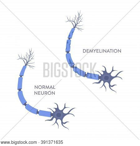 Nerve Cell Demyelination Process Medical Infographic Poster