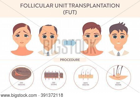 Fut Hair Transplantation Procedure Medical Infographic Poster