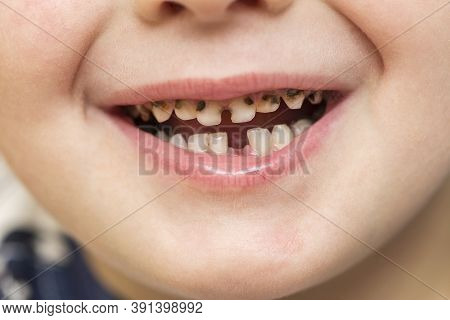 Kid Patient Open Mouth Showing Cavities Teeth Decay. Close Up Of Unhealthy Baby Teeth. Dental Medici