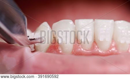 Close Up Of Orthodontist Attaching Orthodontic Brackets On Patient Teeth. Person With Braces On Whit