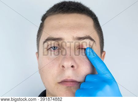 A Doctor Examines A Patient Who Has Blepharitis. Treatment Of Inflammation And Redness Of The Eyelid