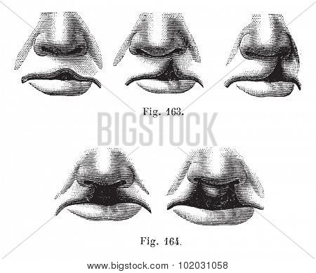 Fig. 163. Degrees of cleft lip simple,  Fig. 164. Cleft lip double, vintage engraved illustration. Usual Medicine Dictionary - Paul Labarthe - 1885.