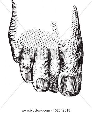 Faulty position of the second toe causing the embodiment of the nail of the second toe, vintage engraved illustration. Usual Medicine Dictionary - Paul Labarthe - 1885.