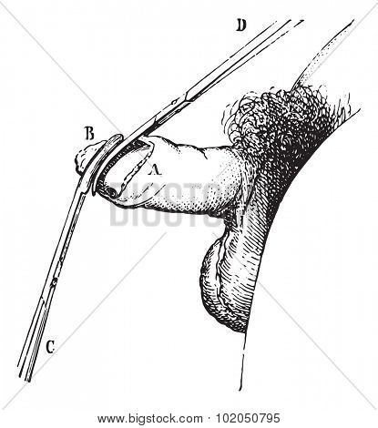 Operation of phimosis by circumcision, vintage engraved illustration. Usual Medicine Dictionary - Paul Labarthe - 1885.