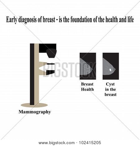 Mammography. Diagnosis of breast cancer. Diagnosis of cysts in the breast