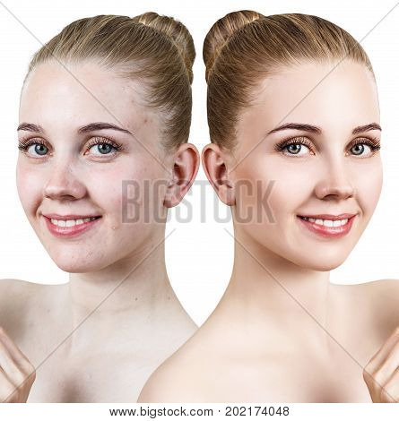 Comparison portrait of young girl with acne before and after retouch.