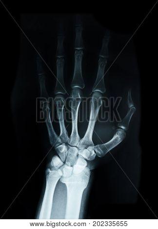 Carpal bones Human X Ray on black.