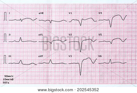 Emergency cardiology and intensive care. ECG with acute period of large-focal widespread anterior myocardial infarction poster