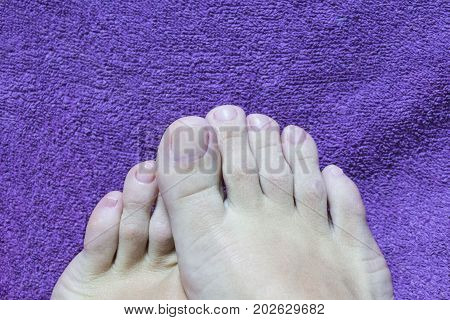 Pedicure. Female feet in beauty salon on purple towel. concept of nail care. end process of pedicure.