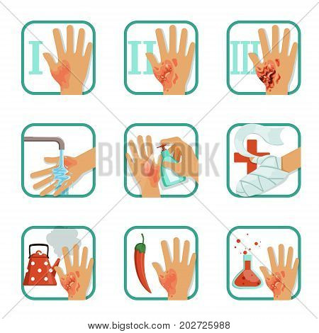Degree burns set, burns treatment and classification vector Illustrations on a white background poster