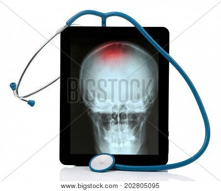 Stethoscope with tablet on white background. X-ray image of head on screen. Oncology concept