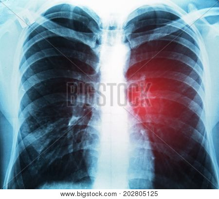 X-ray image of chest. Lung cancer concept