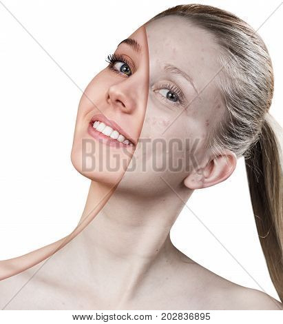 Woman with problem skin before and after treatment and make-up over white background.