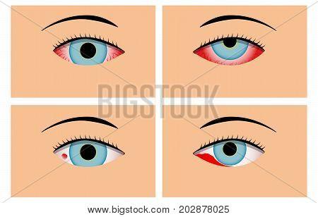 Conjunctivitis and Red Bloodshot Eyes vector design