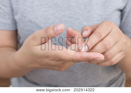 Woman scratching the itch on her finger Healthcare Concept.