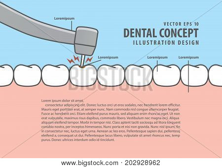 Layout Decay Tooth Treatment (caries) Cartoon Style For Info Or Book Illustration Vector. Dental Con