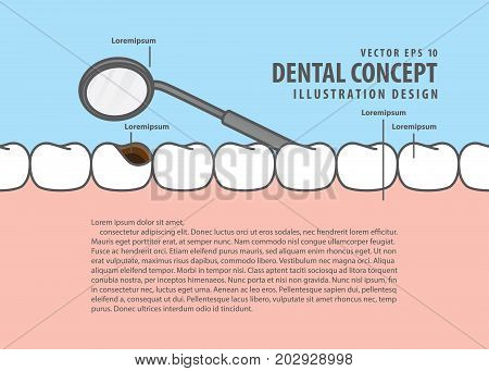Layout Decay Tooth Check Up (cavity) Cartoon Style For Info Or Book Illustration Vector. Dental Conc