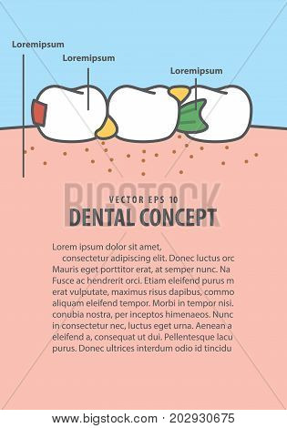 Layout Food Stuck In Teeth Frame Cartoon Style For Info Or Book Illustration Vector On Blue Backgrou