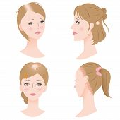 female hair loss: receding hairline, bald spot on the top or side of the head, and traction by putting the hair under strain poster