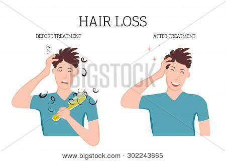 Dandruff on the scalp bothers the person. Fungal diseases of the skin, dermatology. Medical banner concept of the disease before and after treatment. Vector illustration poster