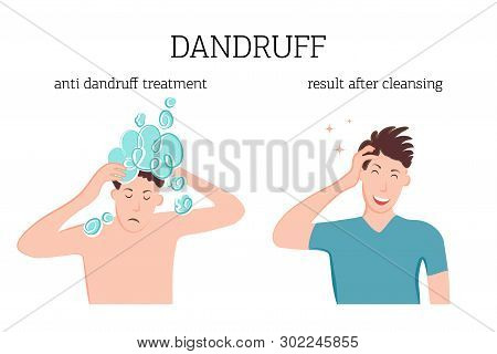 A Man Washes His Head With Therapeutic Dandruff Shampoo. The Man Is Glad That The Dandruff Has Disap