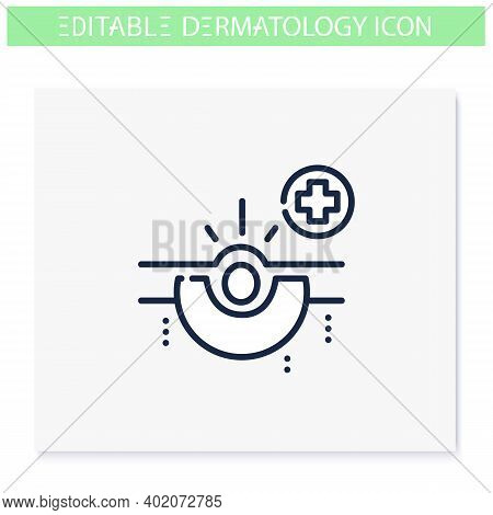 Acne Line Icon. Skin Problem, Dermatologic Disease. Comedone, Inflamed Pimple. Skincare, Cosmetology