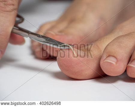Scissors Cut The Nails On The Big Toe Of A Woman's Foot. The Concept Of The Care Of Nails And Feet.