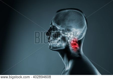 X-ray Of A Mans Head. Medical Examination Of Head Injuries.