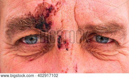 A Male Eye With A Damaged Eyebrow In A Fight. Eye Hematoma. Damaged Eyebrow. A Bleeding Wound. Stree