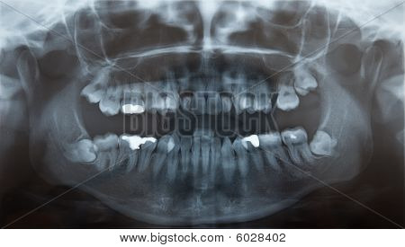 X-Ray of problematic wisdom teeth for extraction and fillings