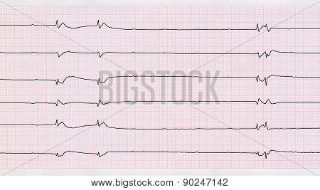 Ecg With Single Ventricular Complexes And Ventricular Asystole (