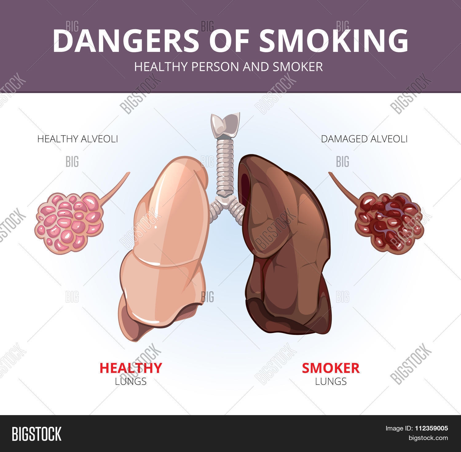 Lungs alveoli healthy vector photo free trial bigstock lungs and alveoli of a healthy person smoker vector medical diagram ccuart Images