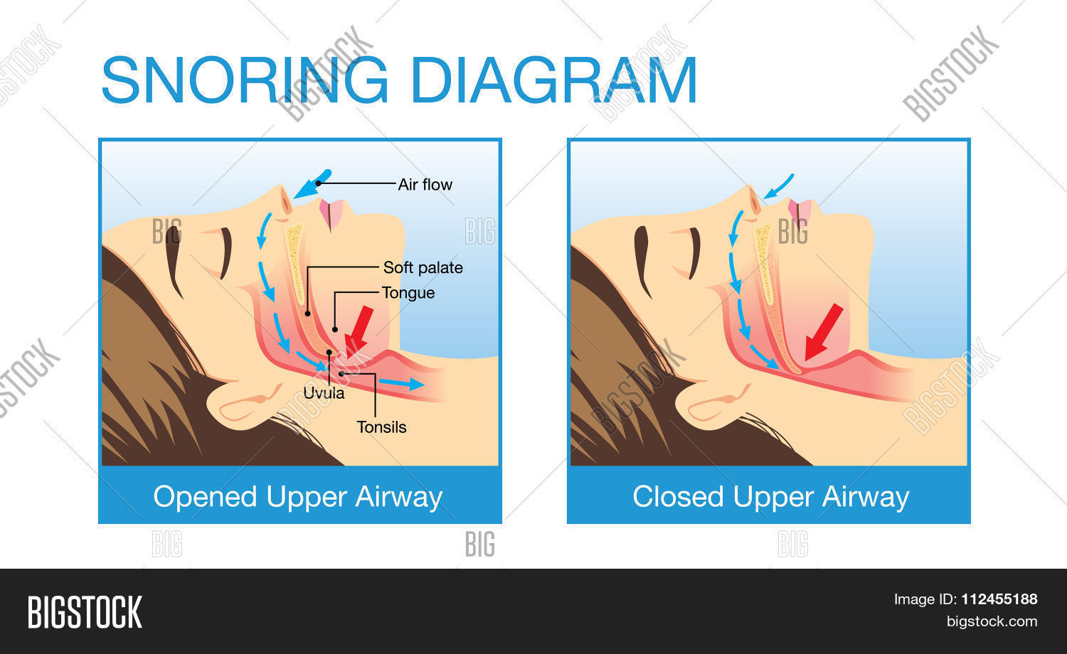 Anatomy Human Airway Vector & Photo (Free Trial) | Bigstock