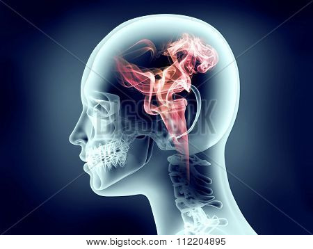 Xray Image Of Human Head With Flames