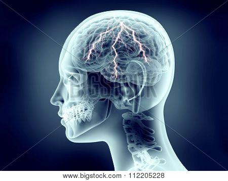 Xray Image Of Human Head With Lightning