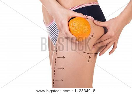 Body with cellulitis and orange fruit