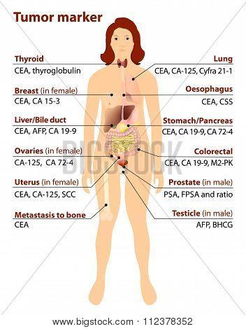 Tumor Marker
