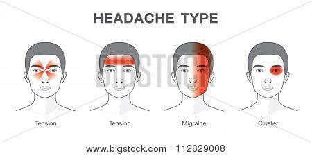 Illustration about headaches 4 type on different area of patient head poster