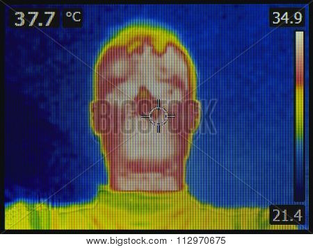 Hot Fever Heat Infrared Thermal Image